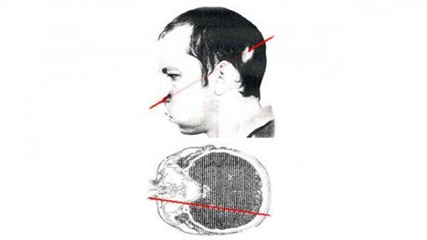 چه اتفاقی می افتد، وقتی سرتان را وارد شتاب دهنده ذرات کنید؟